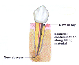 endodontic retreatment image
